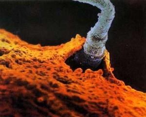 Soi thụ tinh trong ống nghiệm